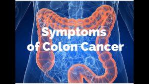 पेट के कैंसर के संकेत