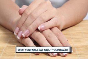 नाखून बताते हैं सेहत का हाल